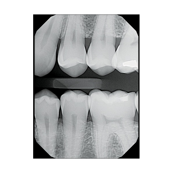 gabinet stomatologiczny DentAM - radiowizjografia
